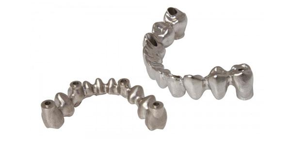 protesis-fija-cromo-cobalto