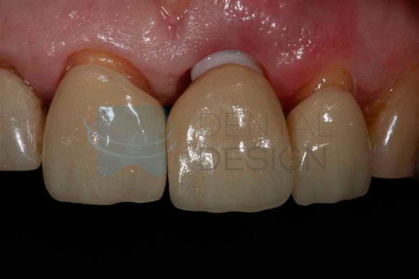 Prótesis sobre implante de zirconio