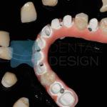 Implantes de BioHPP