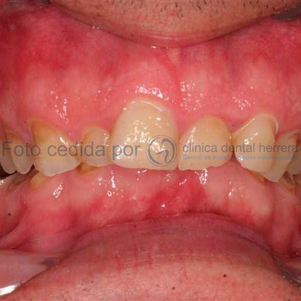 carillas-dentales