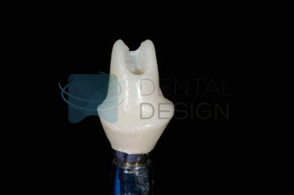 Pilares personalizados CAD-CAM