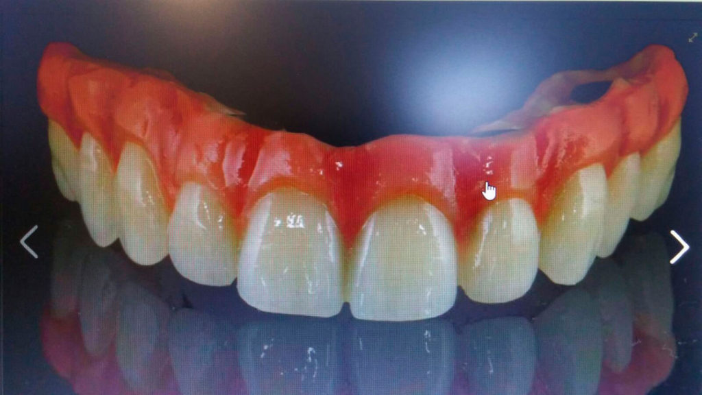 composite-dental-dentadura-biohpp