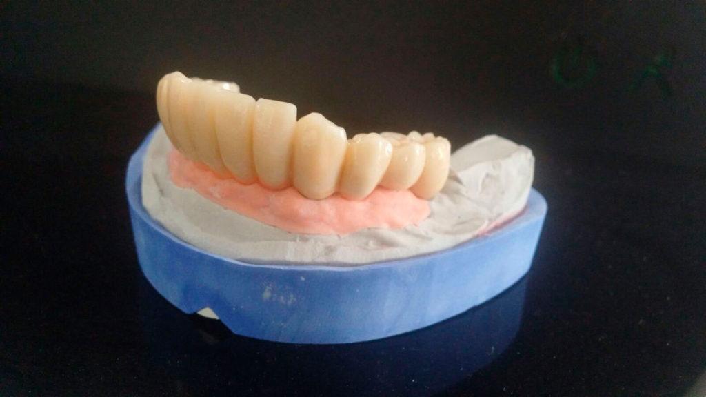 composite-dental-model-dentadura