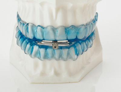 ferula-dental-apnea-sueno