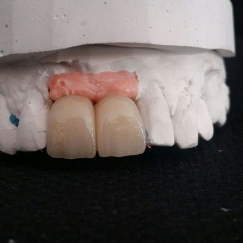 protesis-provisional-2