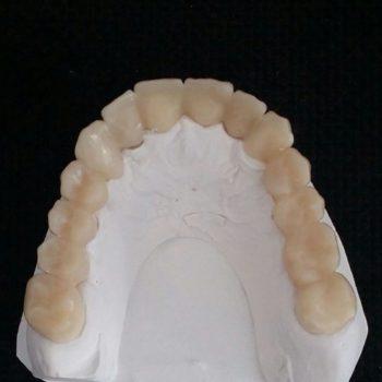 protesis-provisional-3