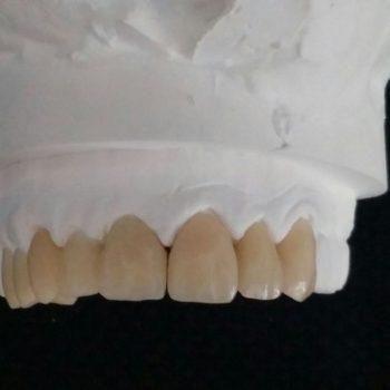 protesis-provisional