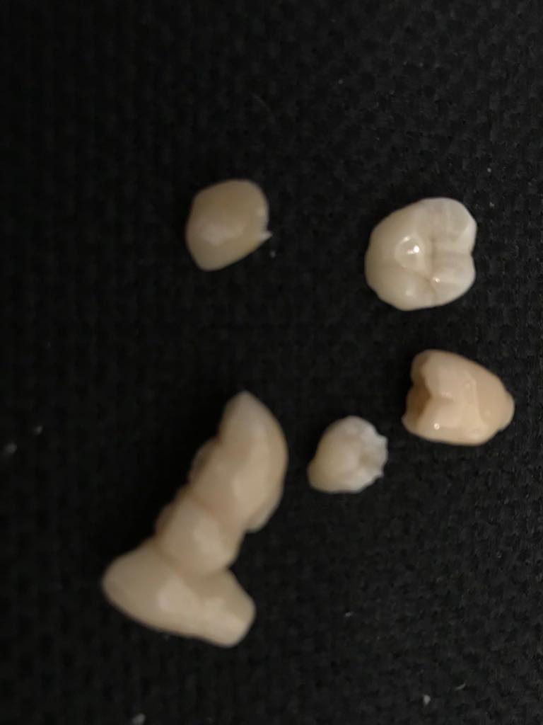 ceramica-dental