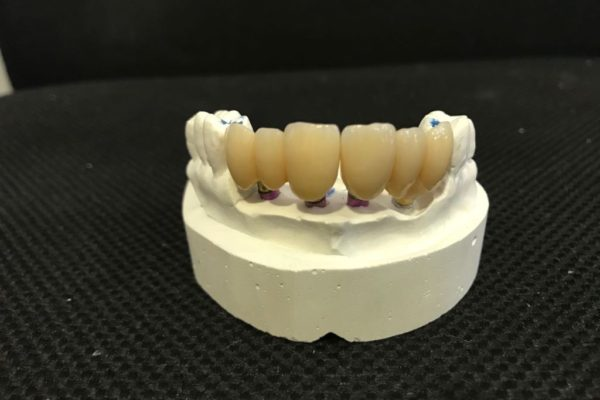ceramica-dental-zirconio