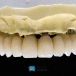 Puente de circonio sobre implantes volumen total IPS e.max ZirCAD prime