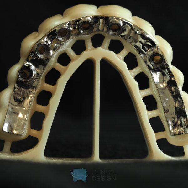 Estructura primaria en titanio y secundaria en zirconio para rehabilitación fija sobre implantes atornillada